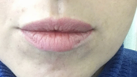 Lips before Permanent MakeUp – Micropigmentation in Rufford Newark UK | Healthy Looks beauty salon